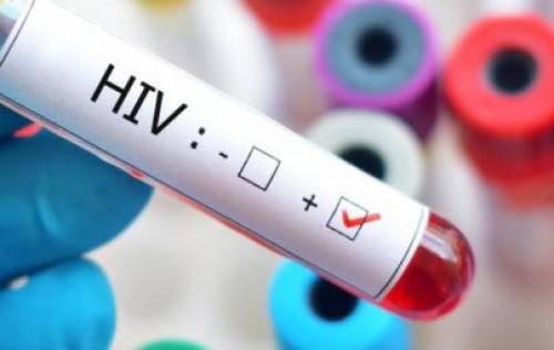 Governo reduz tarifa de importação de medicamentos de HIV/Aids